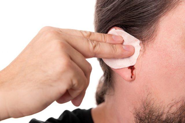 bearded man having ear bleeding