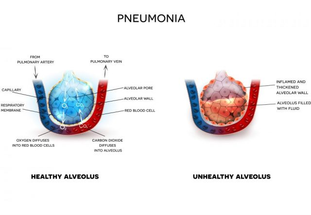 Pneumonia illustration, alveoli with fluid and healthy Alveoli, oxygen and carbon dioxide exchange between alveoli and capillaries
