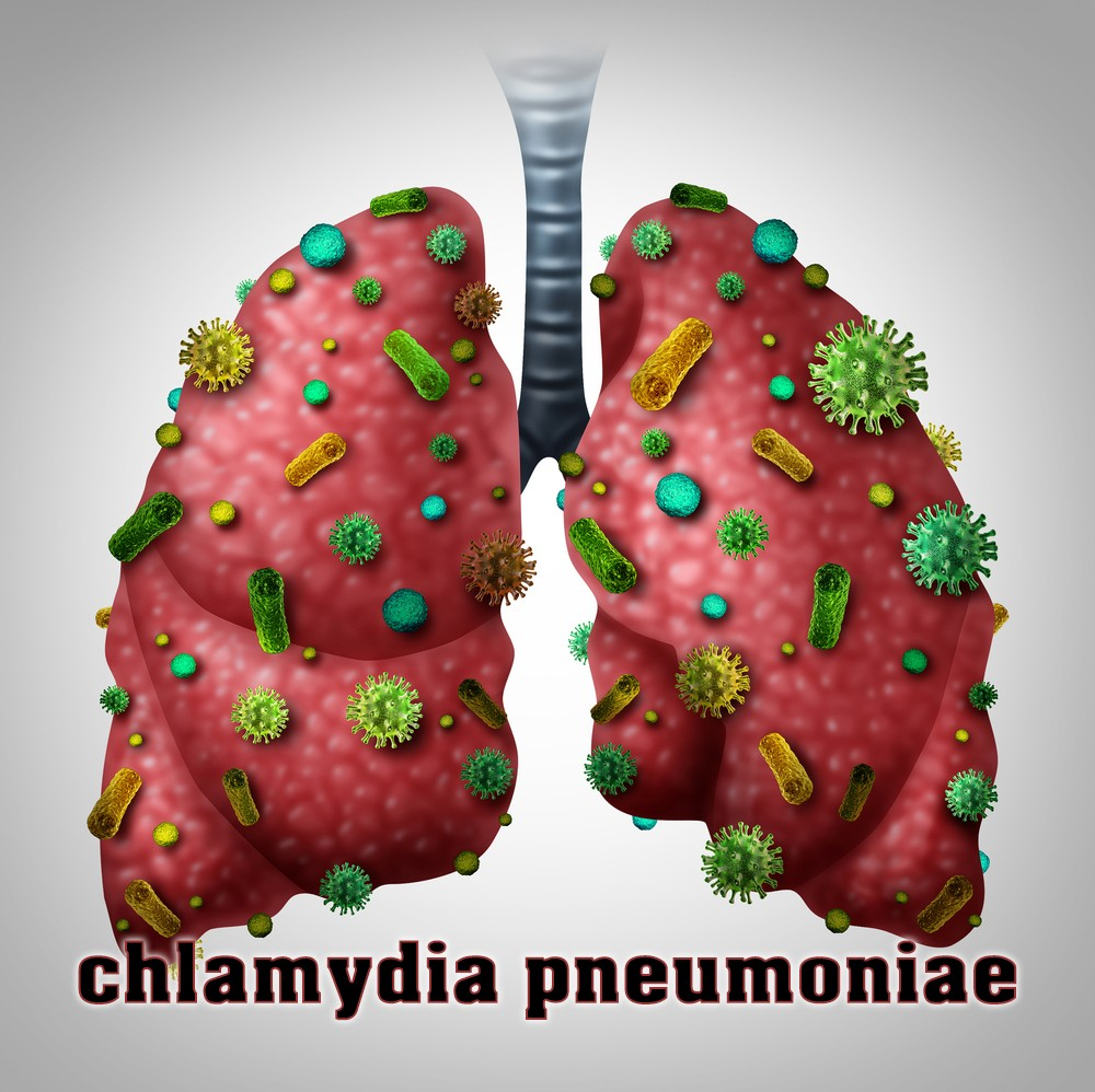 Chlamydia Pneumoniae Symptoms Types Diagnosis Treatment