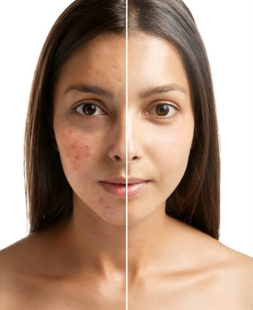Woman face before and after acne treatment procedure