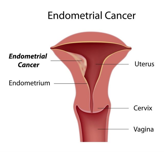 Bloody Discharge -  Endometrial cancer, most common type of uterine cancer