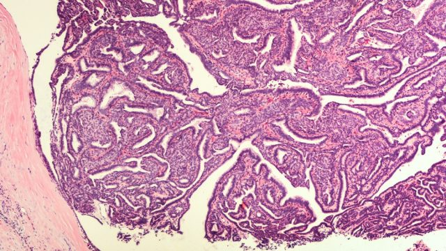 Bloody Discharge: Breast Biopsy - Microscopic image (photomicrograph) of an intraductal papilloma