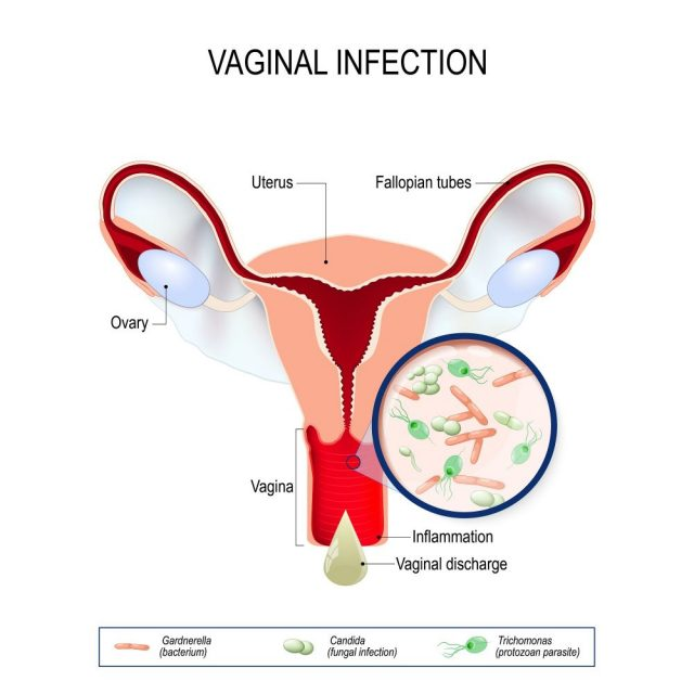 Causes of a Bad Vaginal Odor