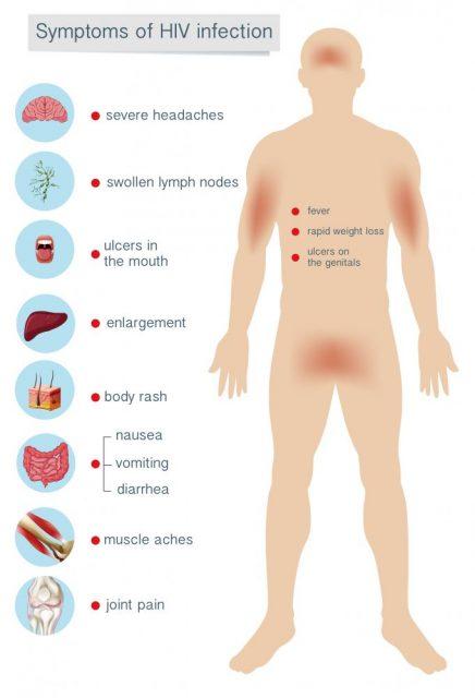 Viral STDs hiv