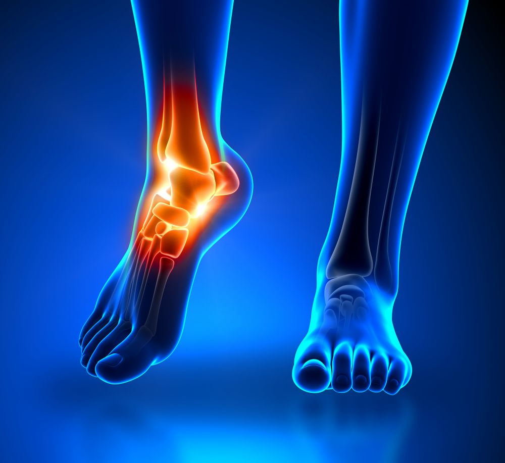 Ankle Pain: Symptoms, Causes and Treatment | STD.GOV Blog