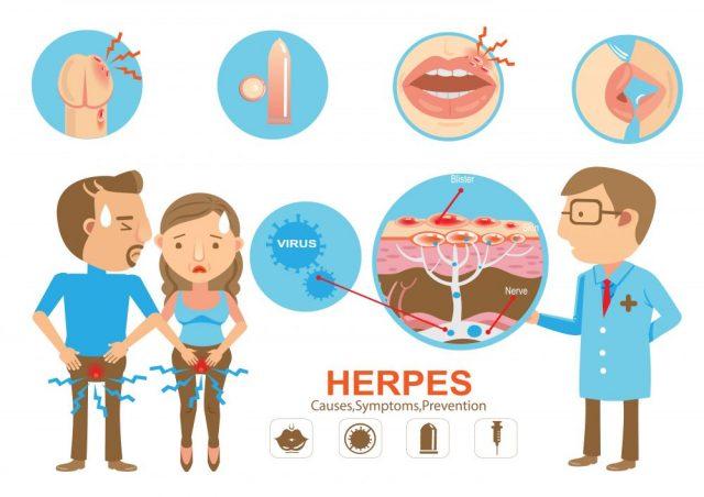 Viral STDs herpes