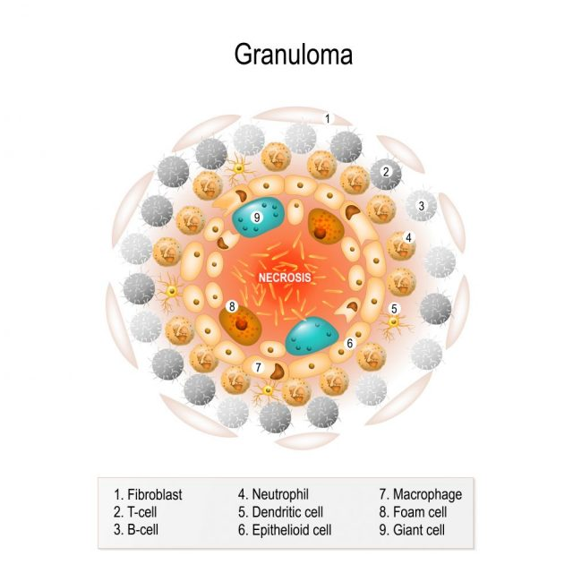 Immune System Diseases granuloma