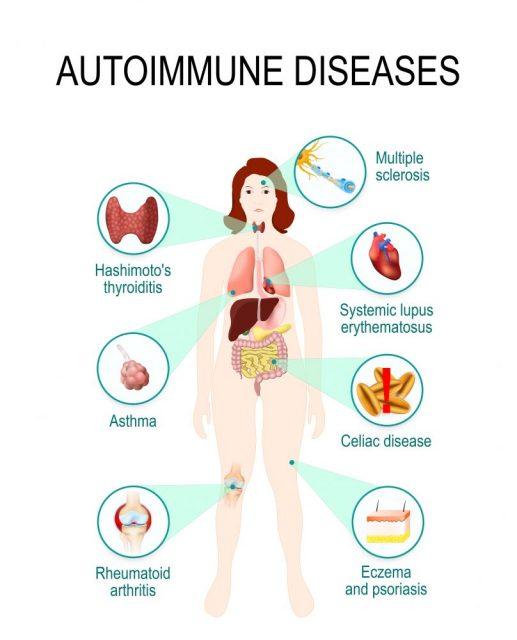 Immune System Diseases