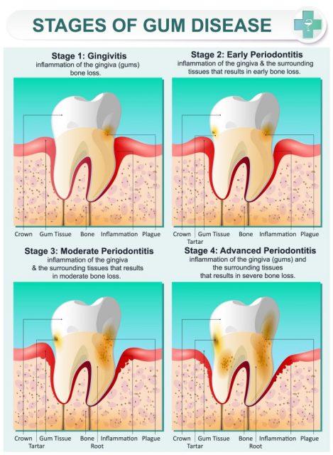 Gingivitis and Periodontitis