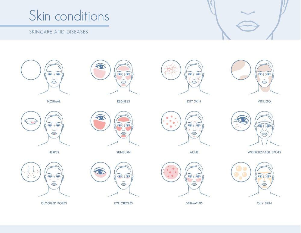 Eczema Around The Eyes Std Gov Blog