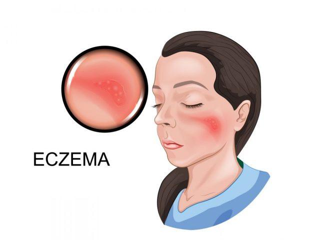Eczema Around the Eyes