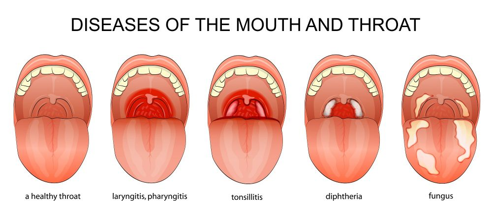 From the time an individual feels a burning sensation in the throat; he  might show the following symptoms as well