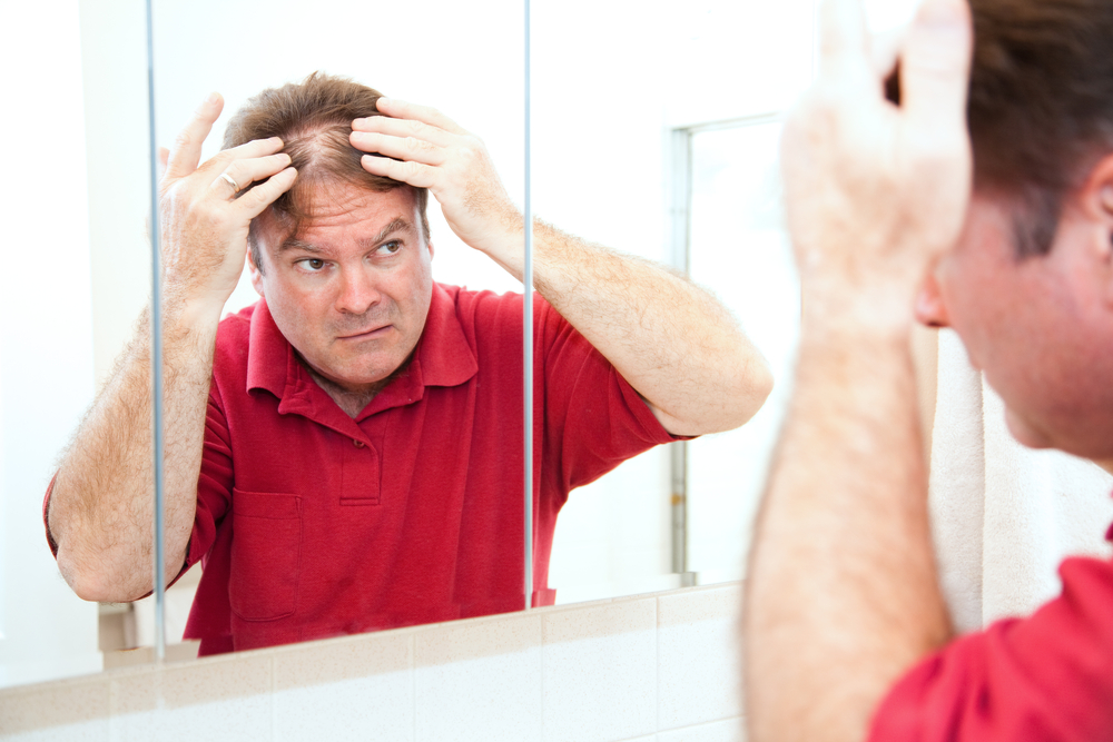 What Causes Bald Patches On The Scalp? | STD GOV Blog
