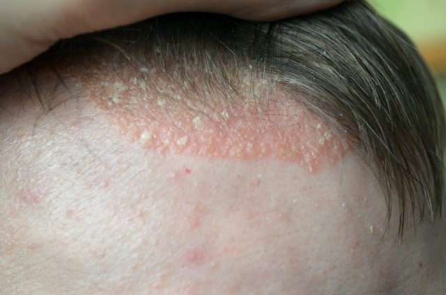 What Causes Bald Patches On The Scalp?
