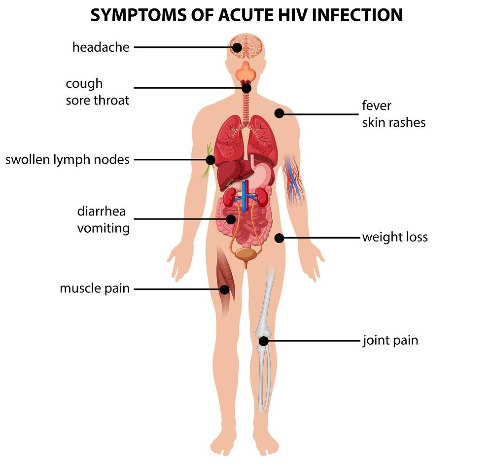 Early Symptoms of HIV | STD.GOV Blog
