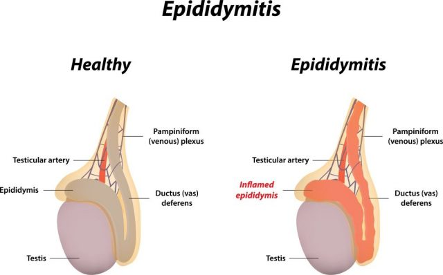 Chronic Epididymitis