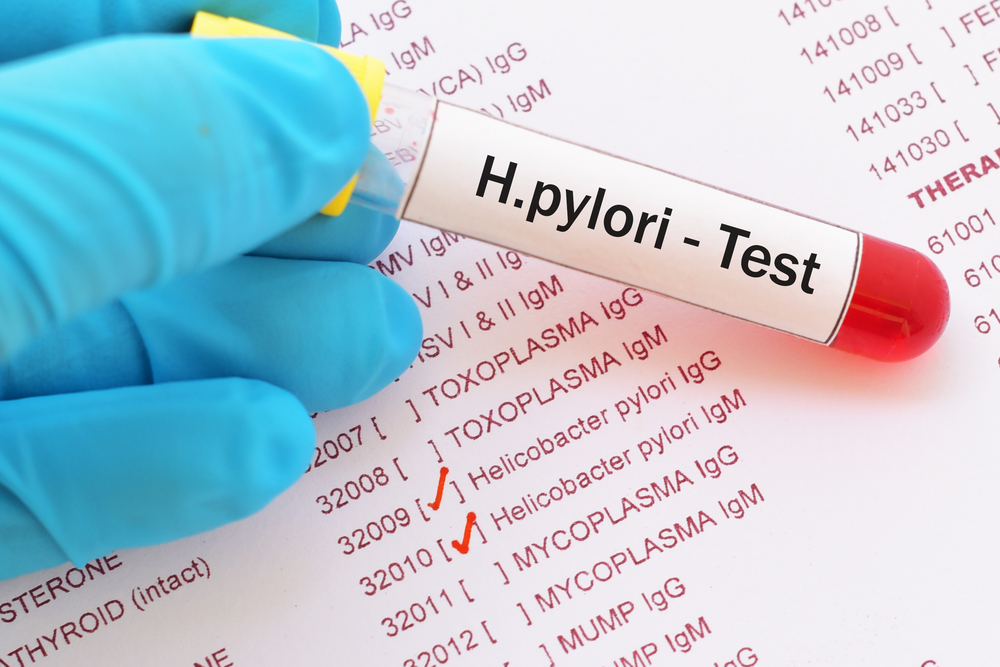 Helicobacter Pylori Transmission Test Diet Std Gov Blog