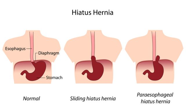 Hernia Symptoms in a Male