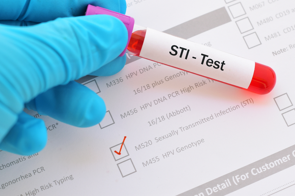 what kind of doctor tests for stds
