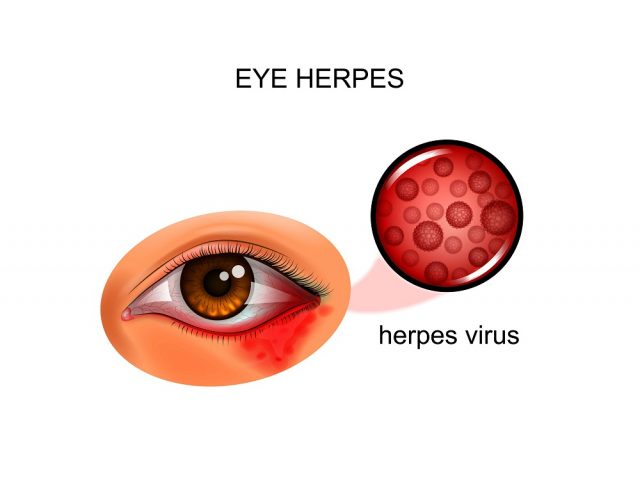 Viral Eye Infection