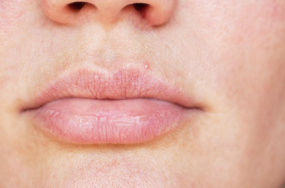 White bumps under skin not acne