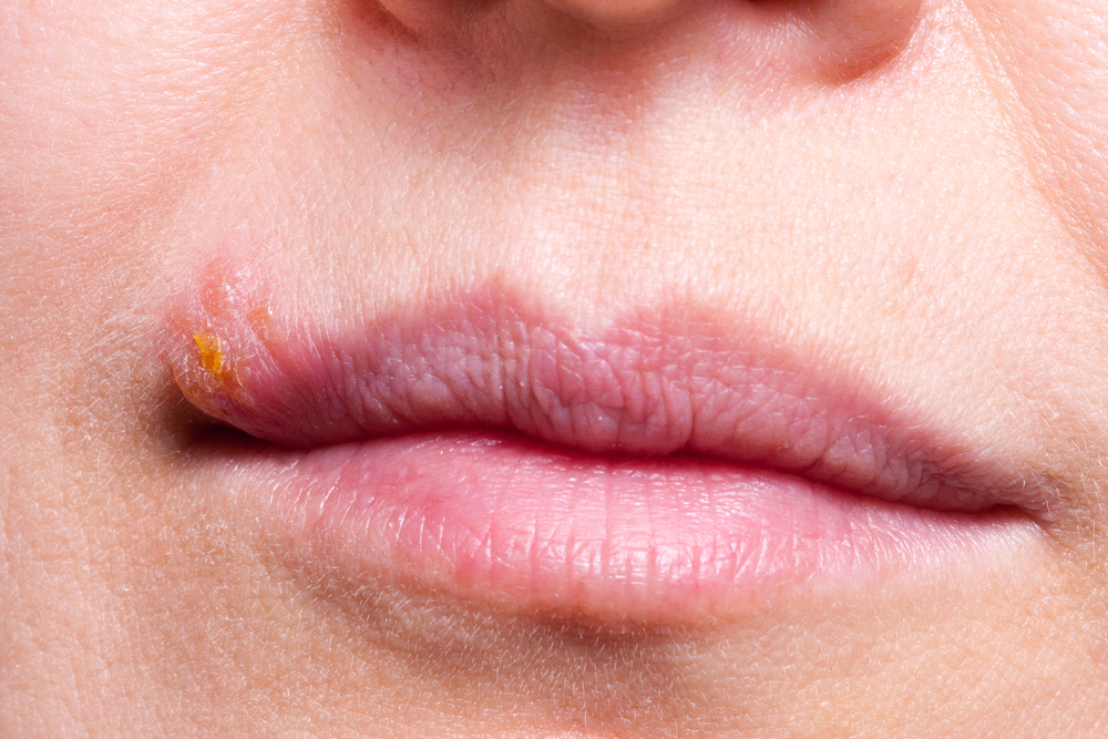 Causes of the White Bumps on Lips | STD GOV Blog