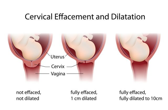 Cervix Dilation