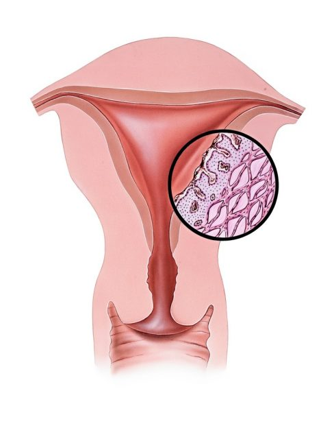 Conceptual illustration of dysmenorrhea (menstrual pain)