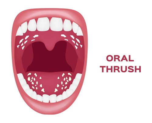 Why Is My Tongue White: Oral Thrush