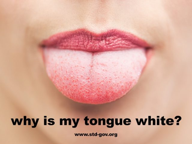 Why Is My Tongue White?