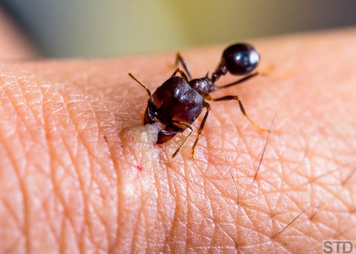 Angry ant biting human skin