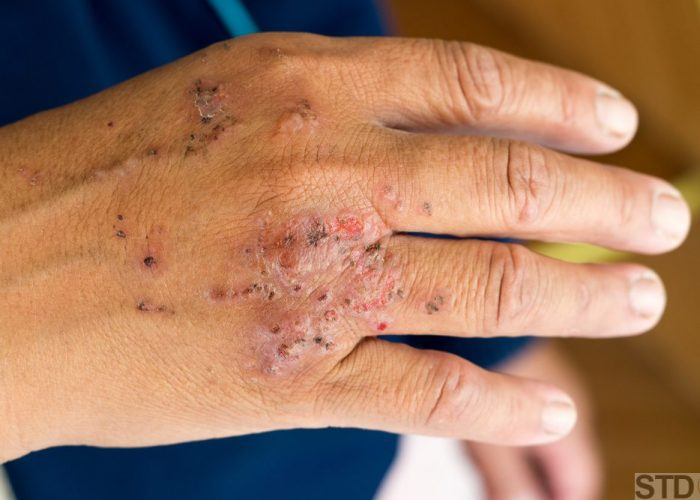 Dermatitis infection after ant bite