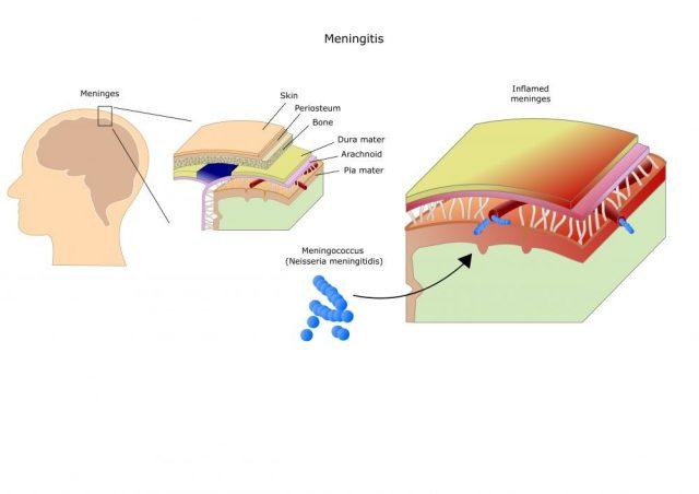 meningitis: inflammation (bacteria, viruses, fungi) of the meninges. Mainly by Neisseria meningitidis (meningococcus)