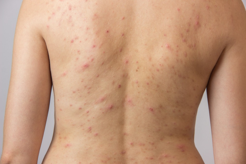How to remove acne scars from your back