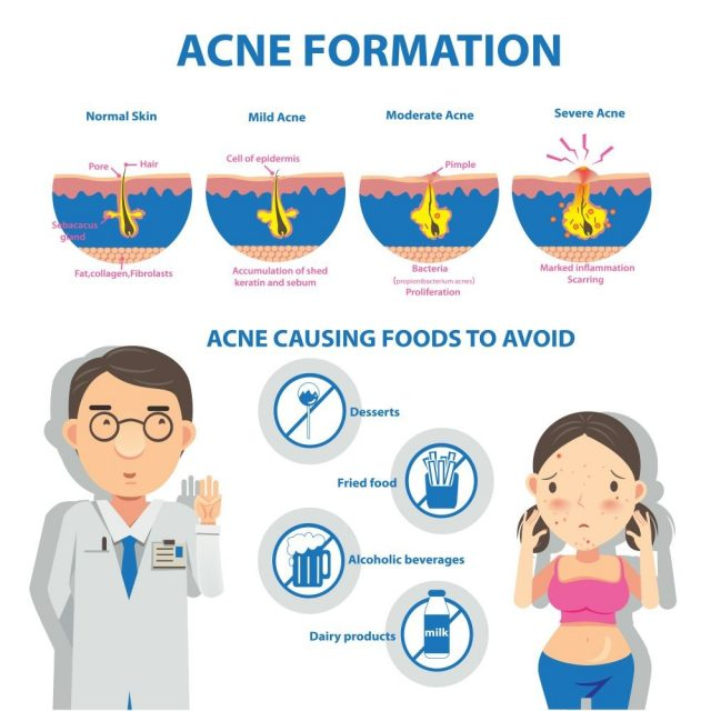 Acne formation Info Graphic and diagrams