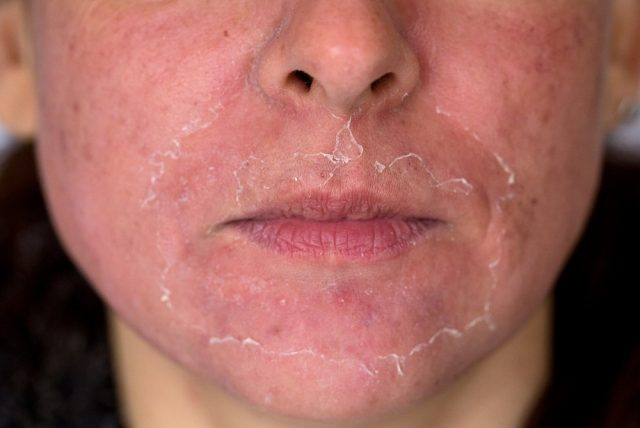 Front view of caucasian woman face after chemical peeling