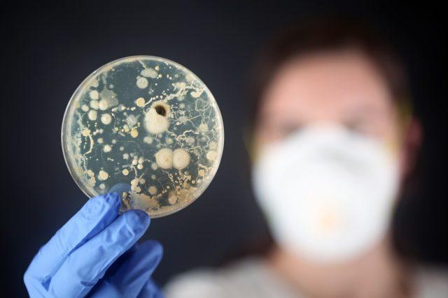 Examining bacteria in a petri dish
