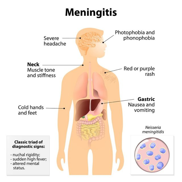 Meningitis. Signs and symptoms. Human silhouette with internal organs