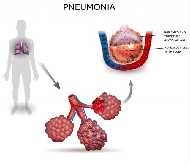 Pneumonia illustration, human silhouette with lungs, close up of alveoli and inflamed alveoli with fluid inside.