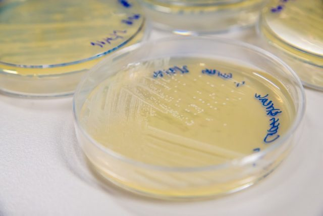Methicillin-Resistant Staphylococcus aureus (MRSA) cross-streak culture on an agar plate
