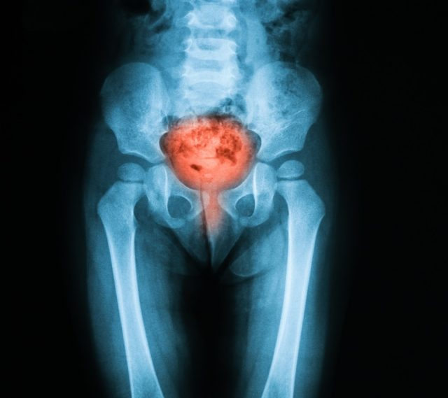 X-ray image of bladder, Showing cystitis or lower urinary tract infection