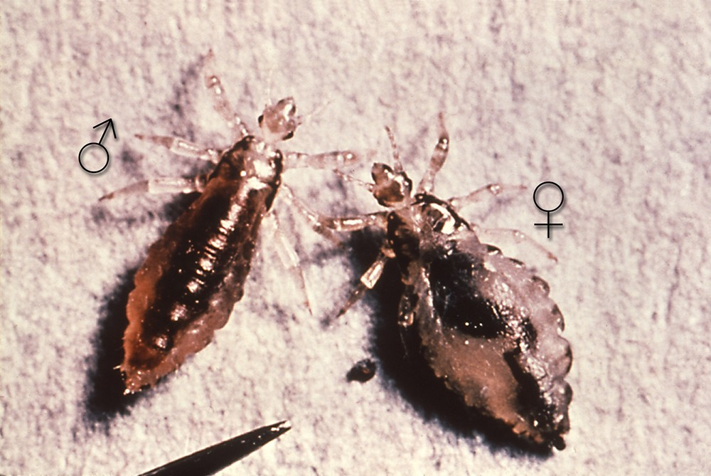 Body lice pictures