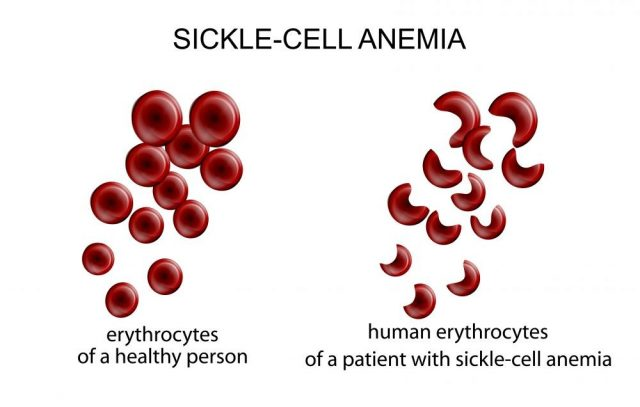 illustration of blood cells in the disease sickle-cell anemia