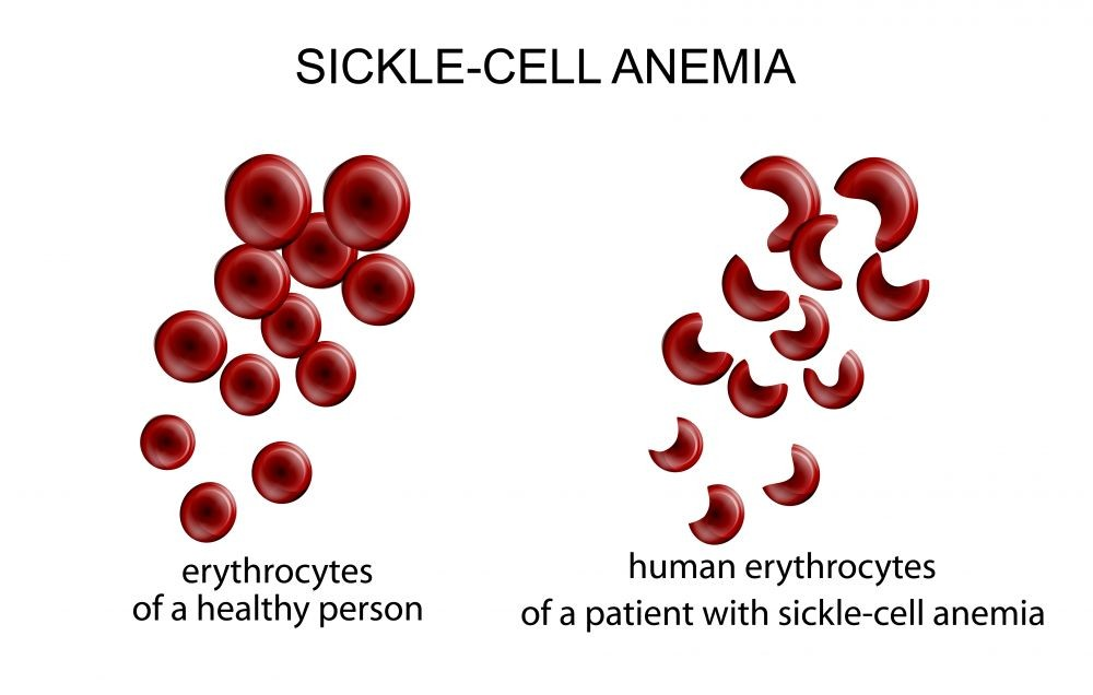 genetic causes of sickle cell anemia Genetic treatments for sickle cell although individuals who carry a single sickle-cell gene actually can the resulting anemia causes its tissues to become.