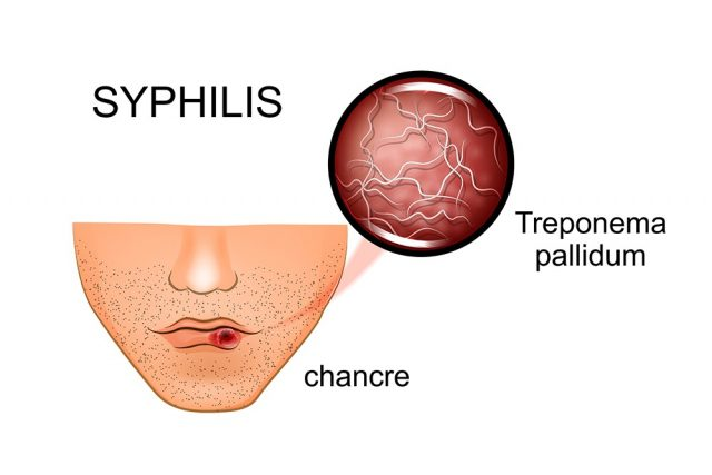 Chancre: Syphilis symptoms