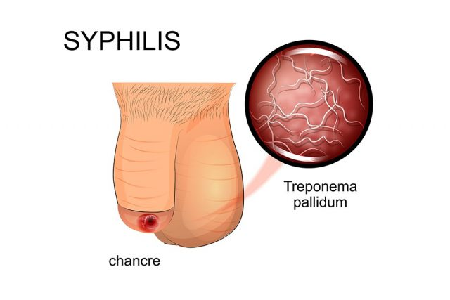 Chancre: Syphilis symptoms, affected penis