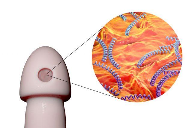 Chancre: Syphilitic ulcer