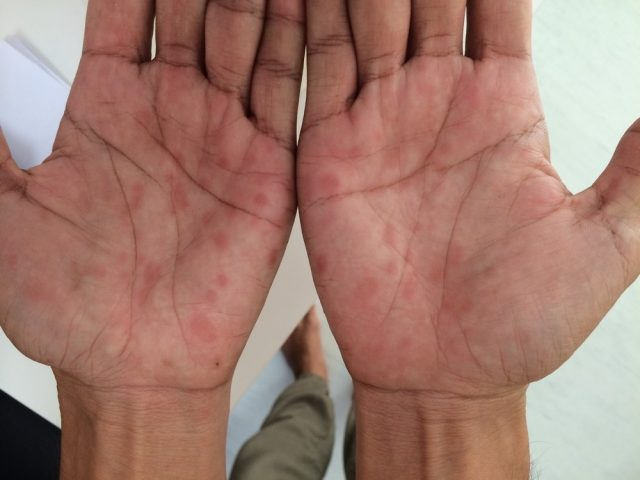 Chancre: Secondary Syphilis, palms involvement