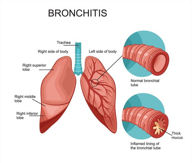 Bronchitis anatomy