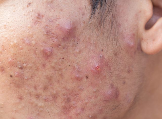 Man with problematic skin and scars from cystic acne (scar)